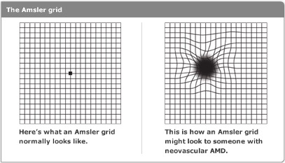 Amsler Grid with and without macular degeneration